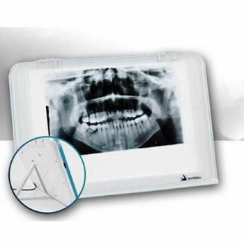 HISHINE® LUNA Dental Negatoscopio