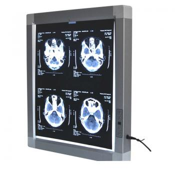 Visualizzatore medico JINDETECH X Raggi Film Diagnostico E.N.T Illuminatore LED View Box